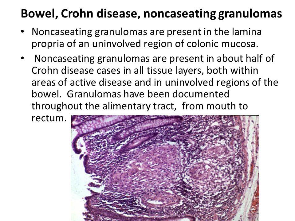 Bowel, Crohn disease, noncaseating granulomas