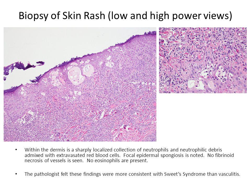 Biopsy of Skin Rash (low and high power views)