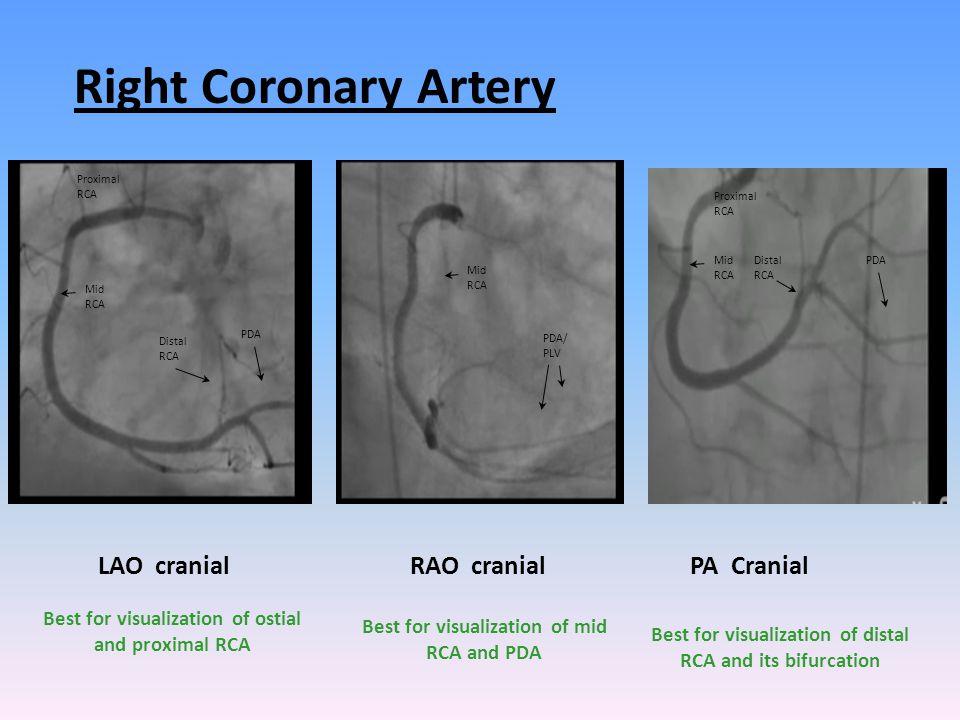 Right Coronary Artery LAO cranial RAO cranial PA Cranial