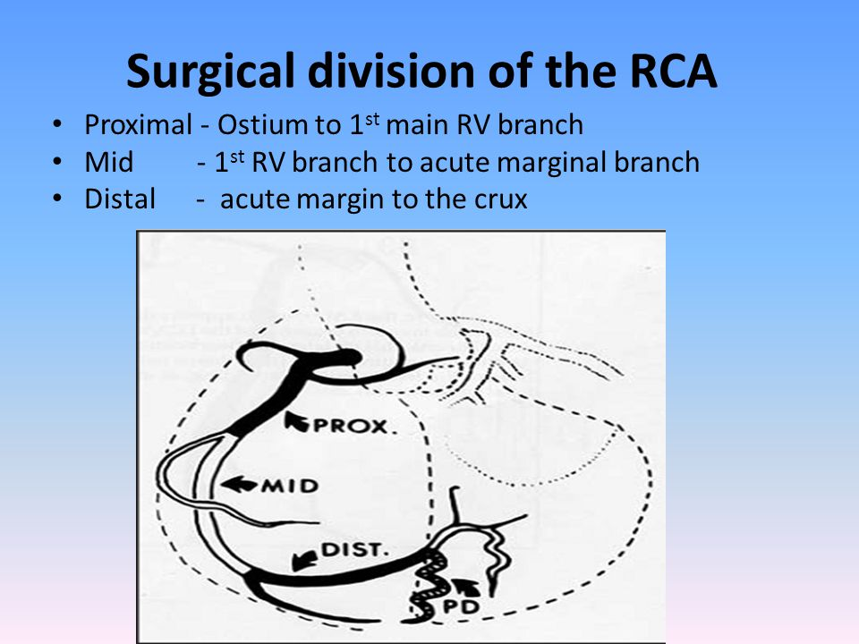 Surgical division of the RCA