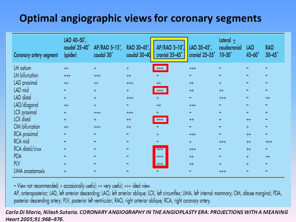 Optimal angiographic views for coronary segments