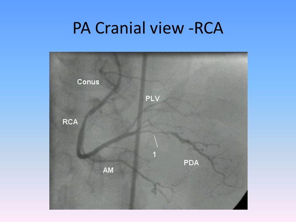 PA Cranial view -RCA