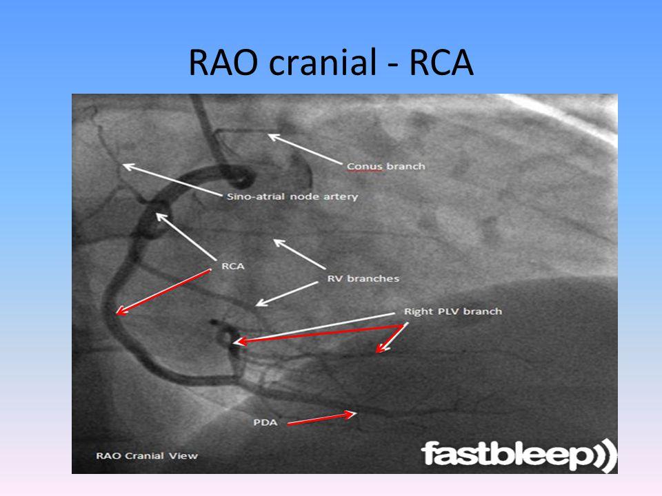 RAO cranial - RCA