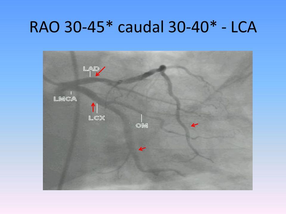 RAO 30-45* caudal 30-40* - LCA