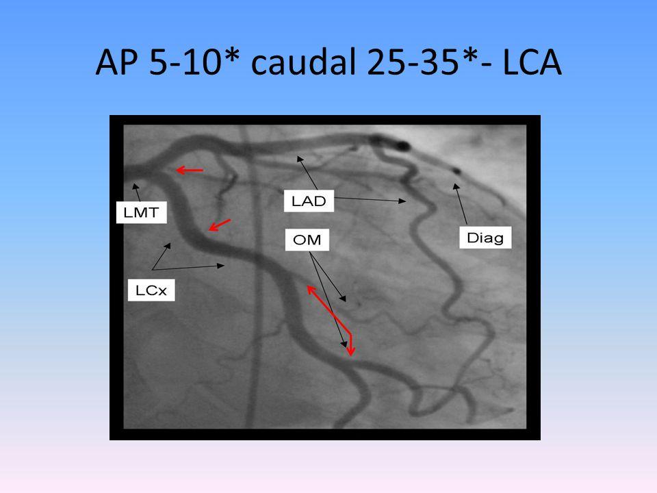 AP 5-10* caudal 25-35*- LCA
