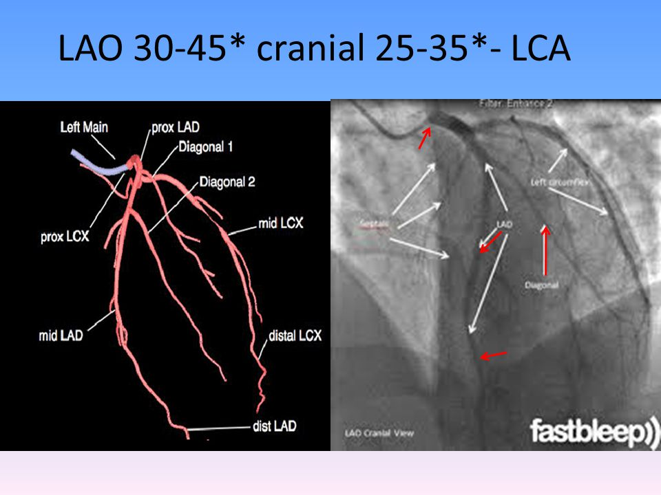 LAO 30-45* cranial 25-35*- LCA Some overlap with LCX can be overcome by more 60 degree LAO tilt.
