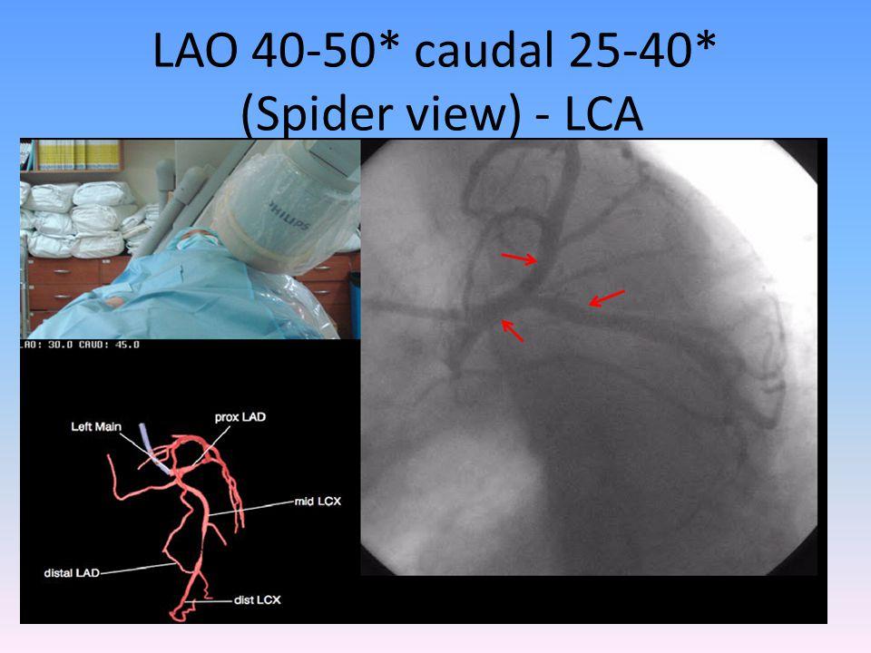 LAO 40-50* caudal 25-40* (Spider view) - LCA