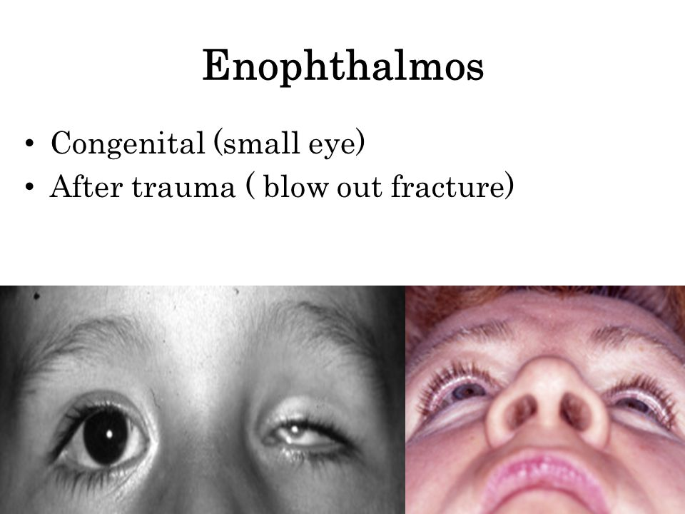 Enophthalmos Congenital (small eye) After trauma ( blow out fracture)