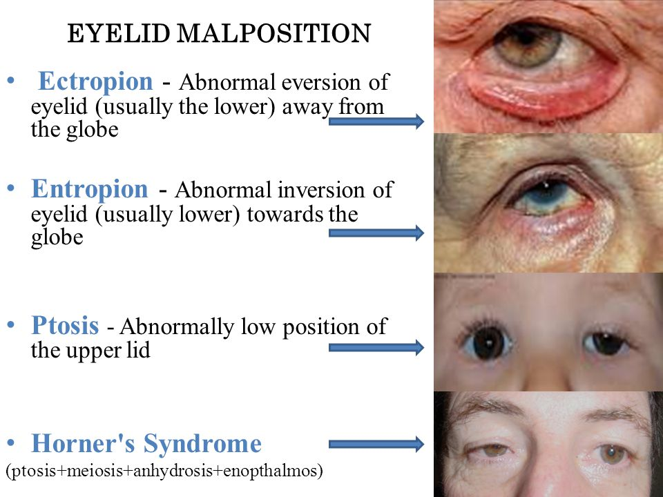 Ptosis - Abnormally low position of the upper lid