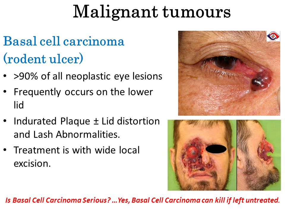 Malignant tumours Basal cell carcinoma (rodent ulcer)