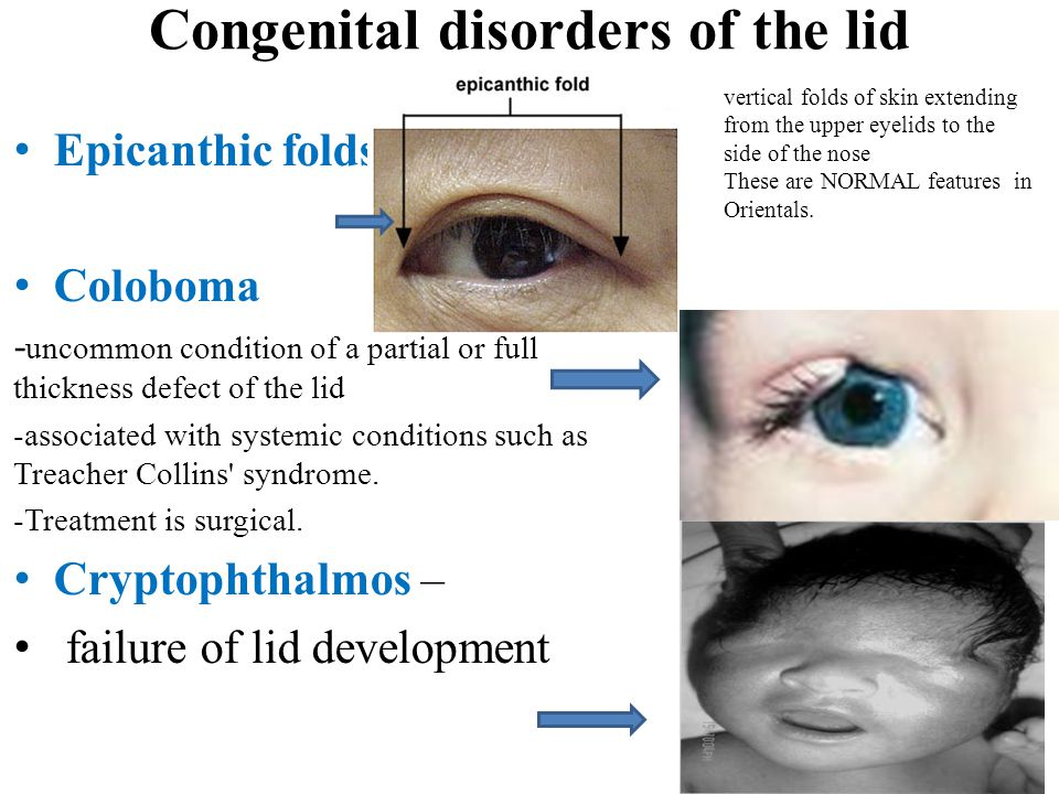 Congenital disorders of the lid