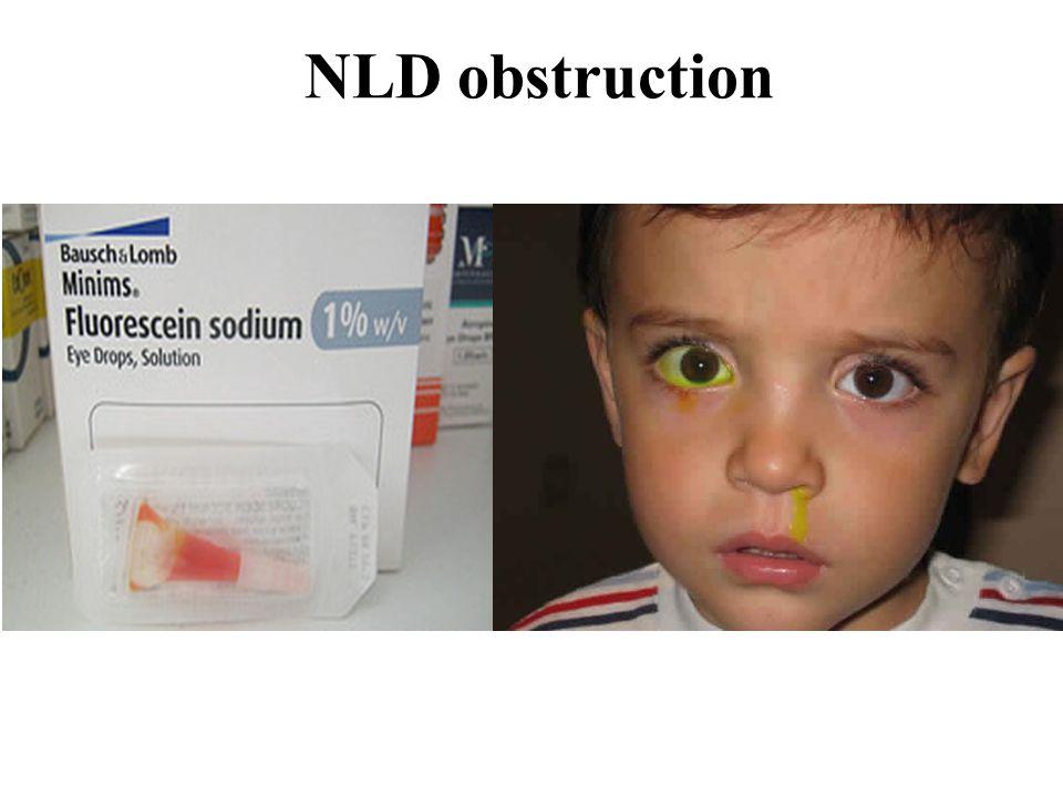 NLD obstruction