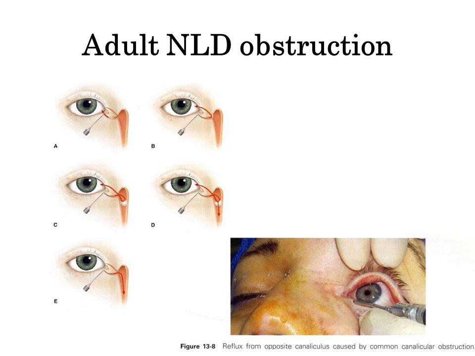 Adult NLD obstruction