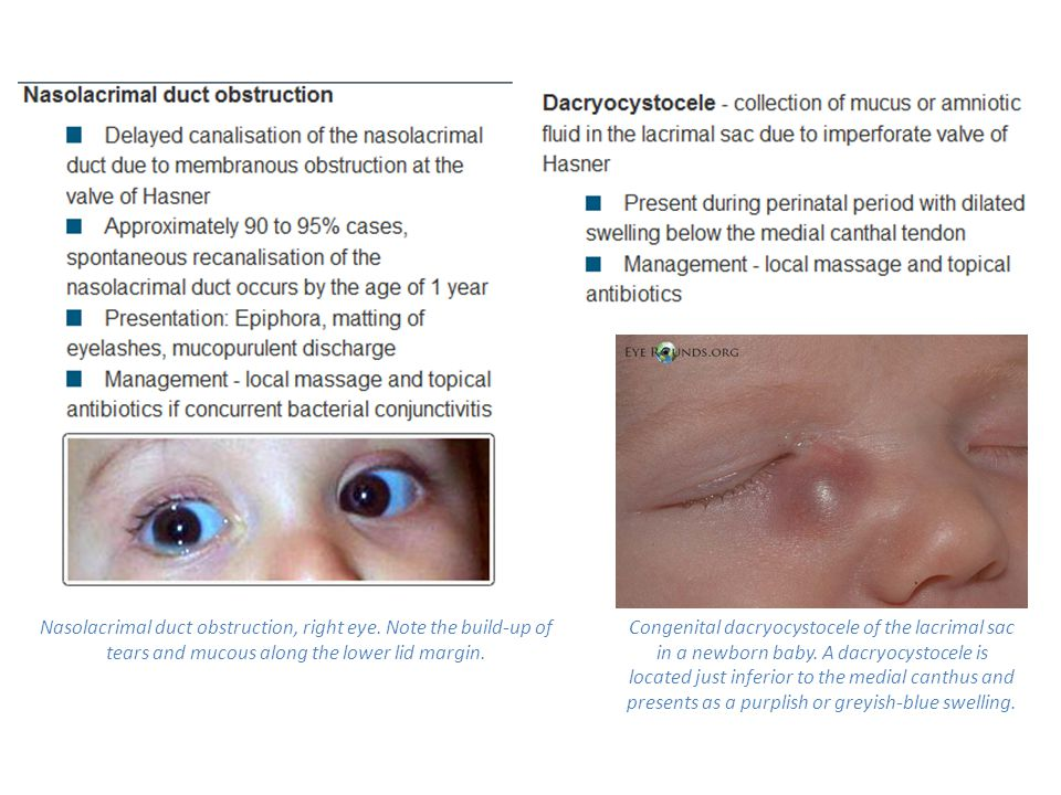 Nasolacrimal duct obstruction, right eye