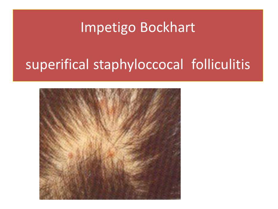 Impetigo Bockhart superifical staphyloccocal folliculitis