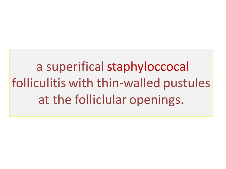 a superifical staphyloccocal folliculitis with thin-walled pustules at the folliclular openings.