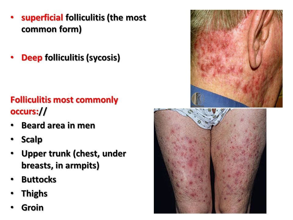 superficial folliculitis (the most common form)