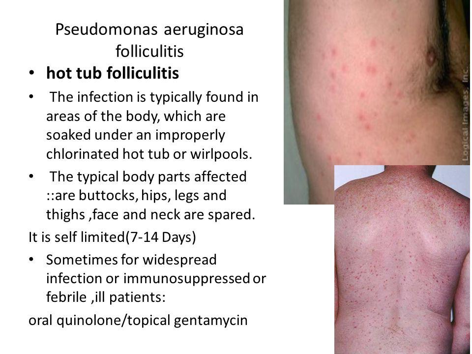 Pseudomonas aeruginosa folliculitis