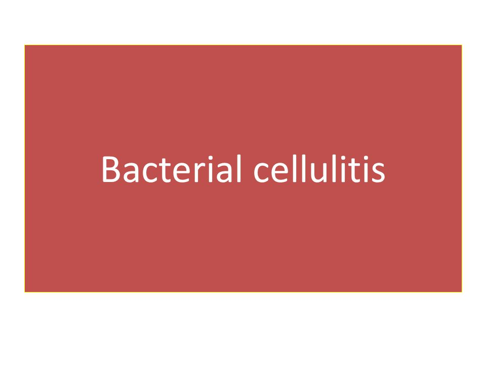 Bacterial cellulitis