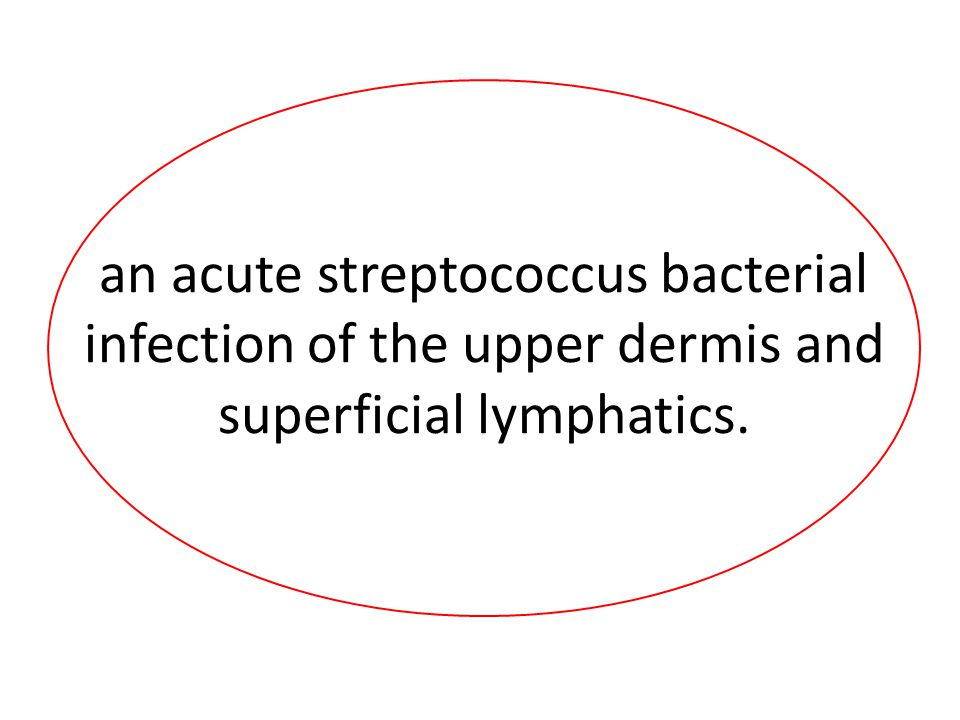 an acute streptococcus bacterial infection of the upper dermis and superficial lymphatics.