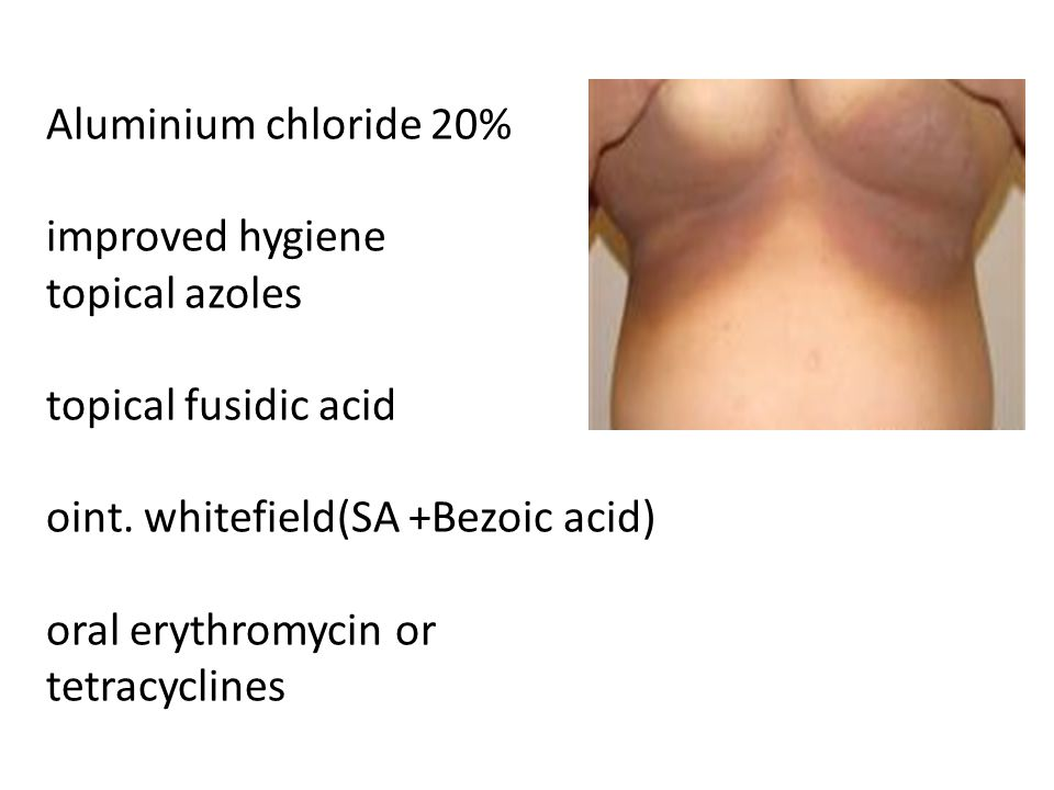 Aluminium chloride 20% improved hygiene topical azoles topical fusidic acid oint.