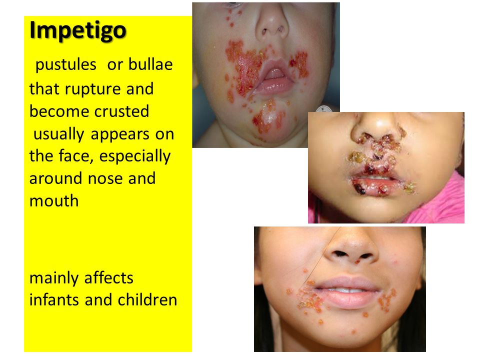 Impetigo pustules or bullae that rupture and become crusted usually appears on the face, especially around nose and mouth mainly affects infants and children