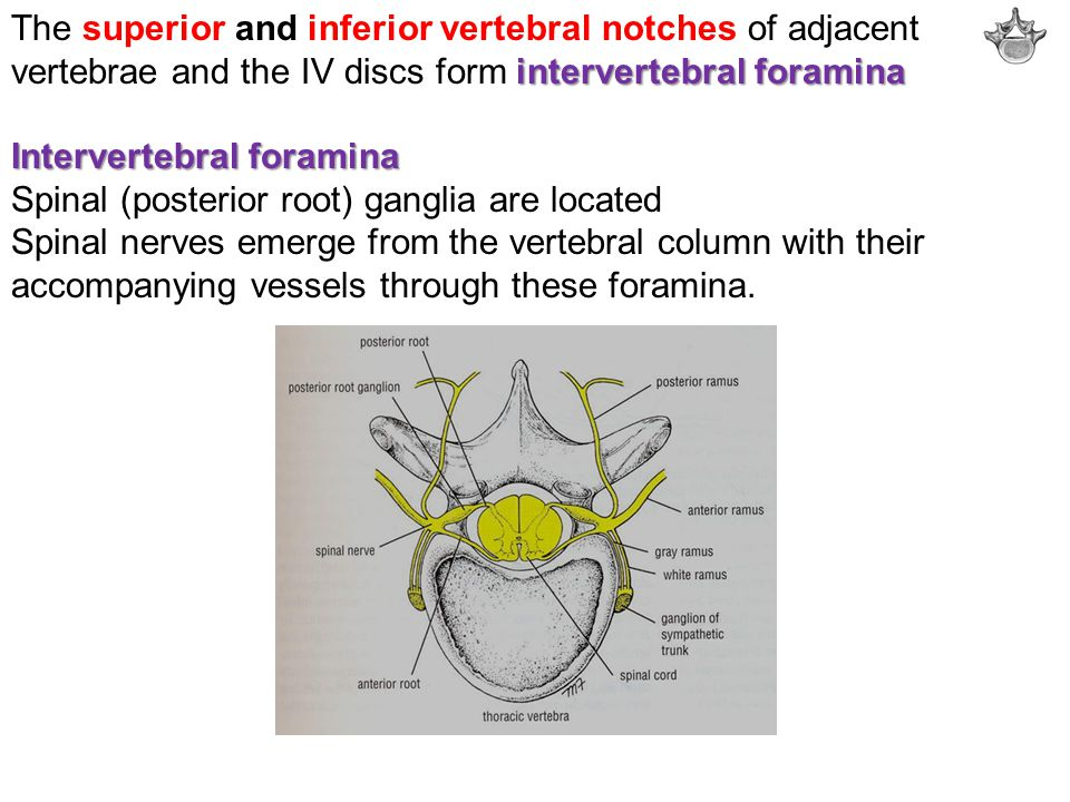 The superior and inferior vertebral notches of adjacent vertebrae and the IV discs form intervertebral foramina