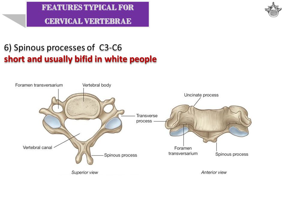 6) Spinous processes of C3-C6 short and usually bifid in white people