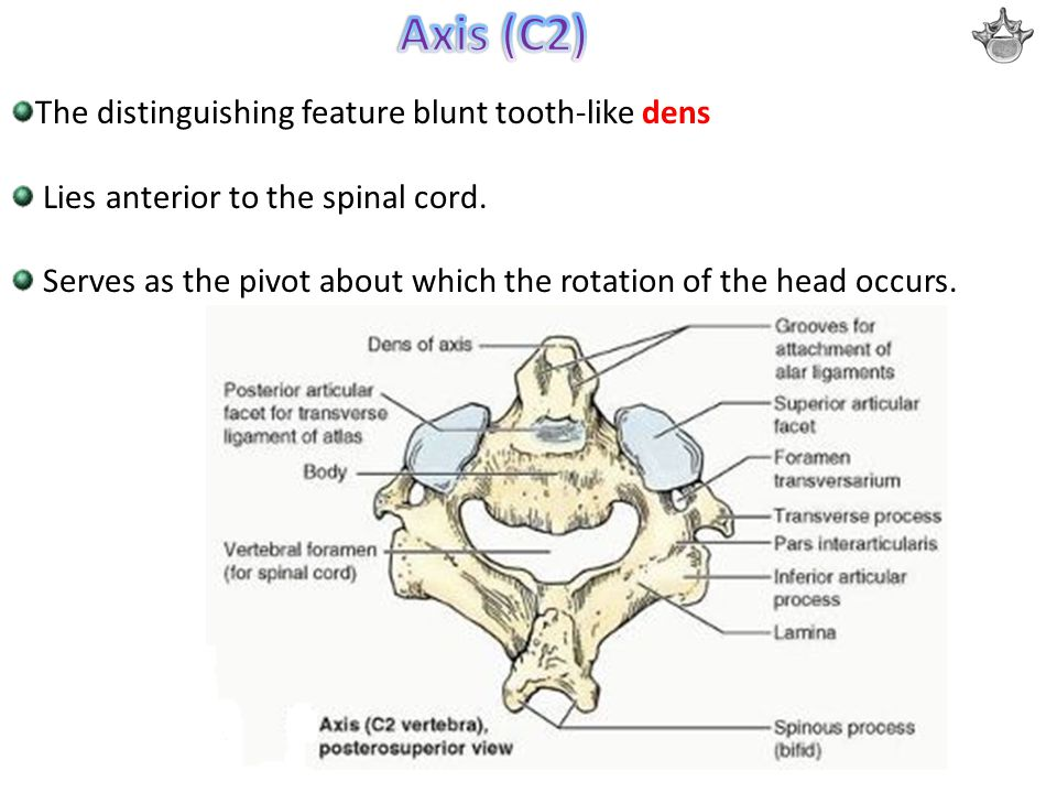 Axis (C2) The distinguishing feature blunt tooth-like dens