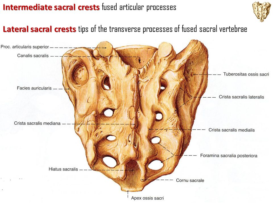Intermediate sacral crests fused articular processes