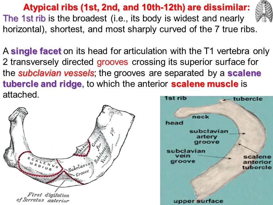 Atypical ribs (1st, 2nd, and 10th-12th) are dissimilar: