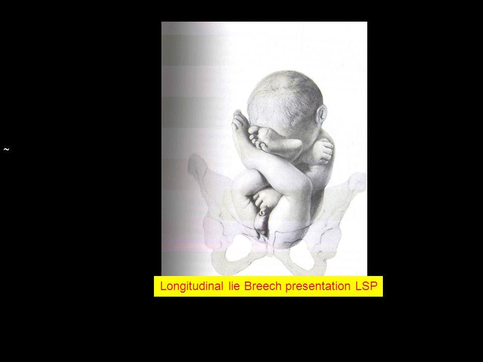 Longitudinal lie Breech presentation LSP
