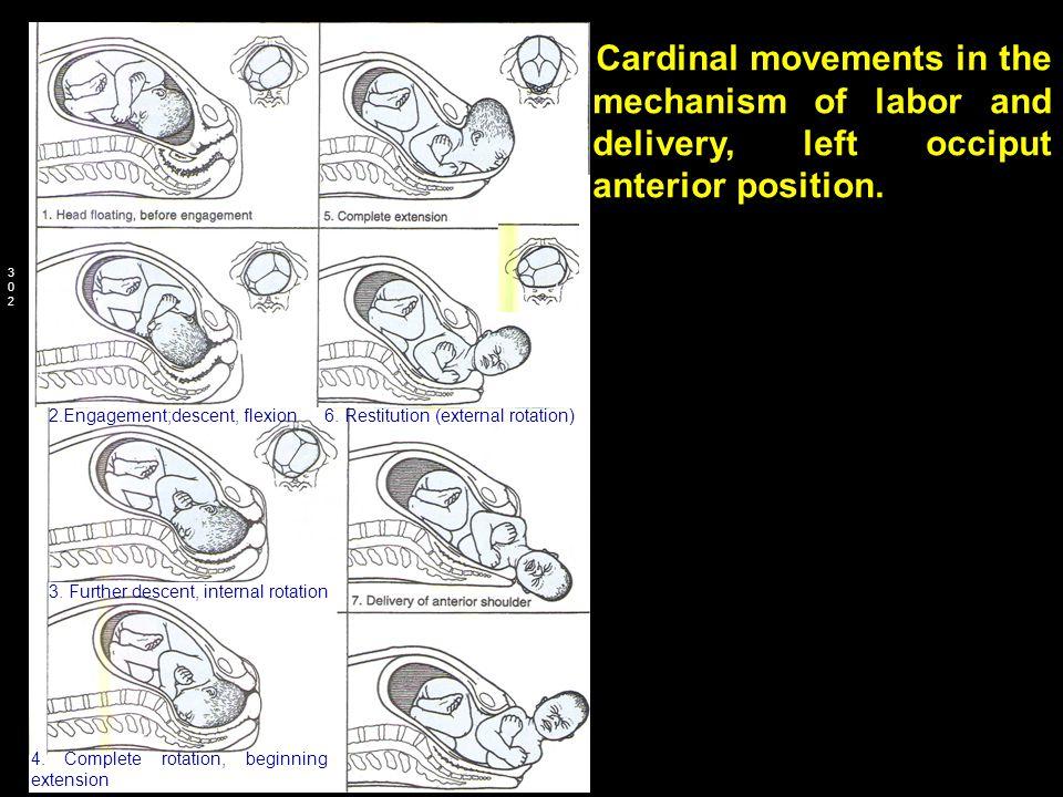 2.Engagement;descent, flexion 6. Restitution (external rotation)