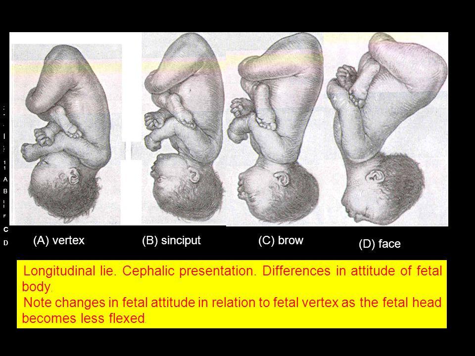 (A) vertex (B) sinciput (C) brow (D) face c I D A B