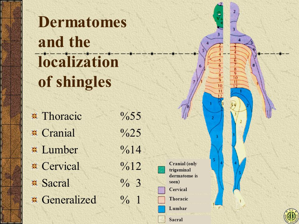 Dermatomes and the localization of shingles