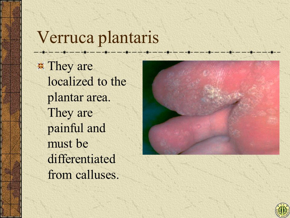 Verruca plantaris They are localized to the plantar area.
