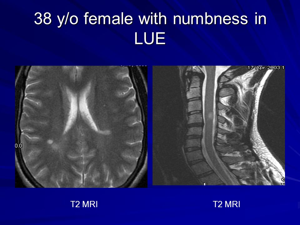 38 y/o female with numbness in LUE