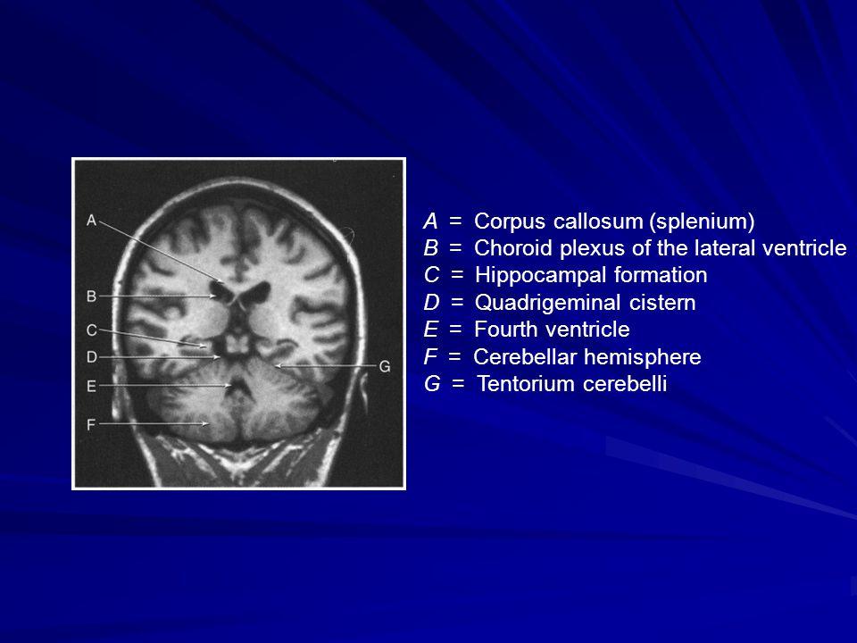 A = Corpus callosum (splenium)