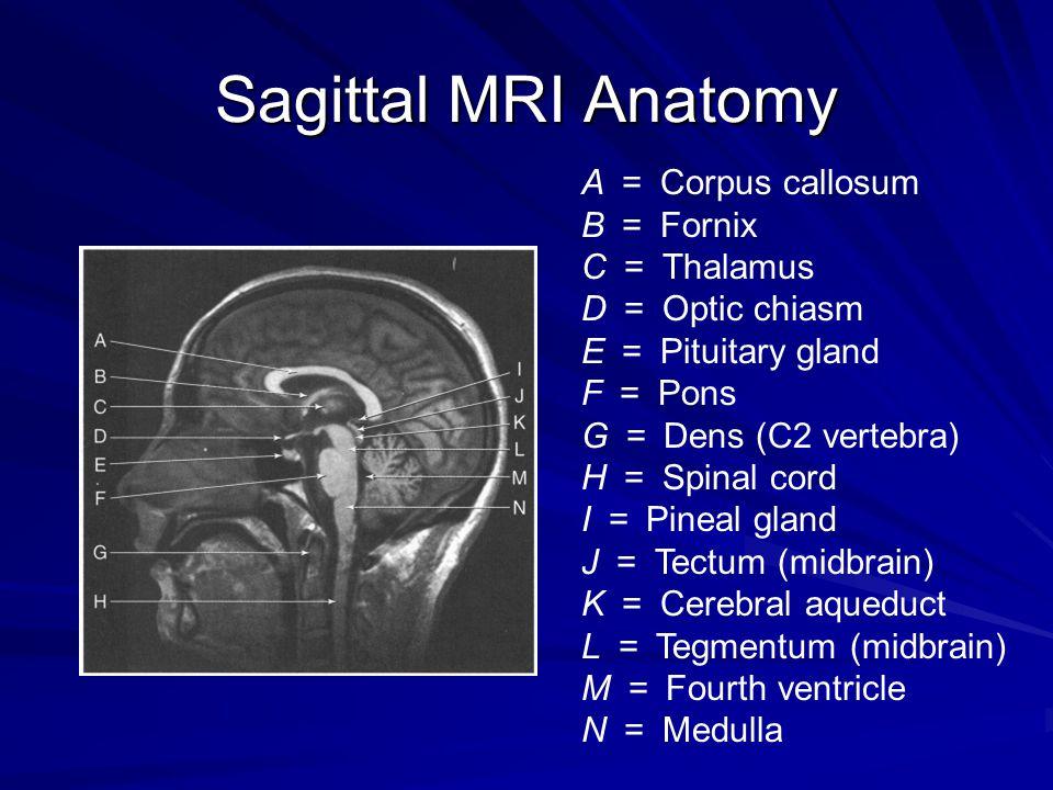 Sagittal MRI Anatomy A = Corpus callosum B = Fornix C = Thalamus