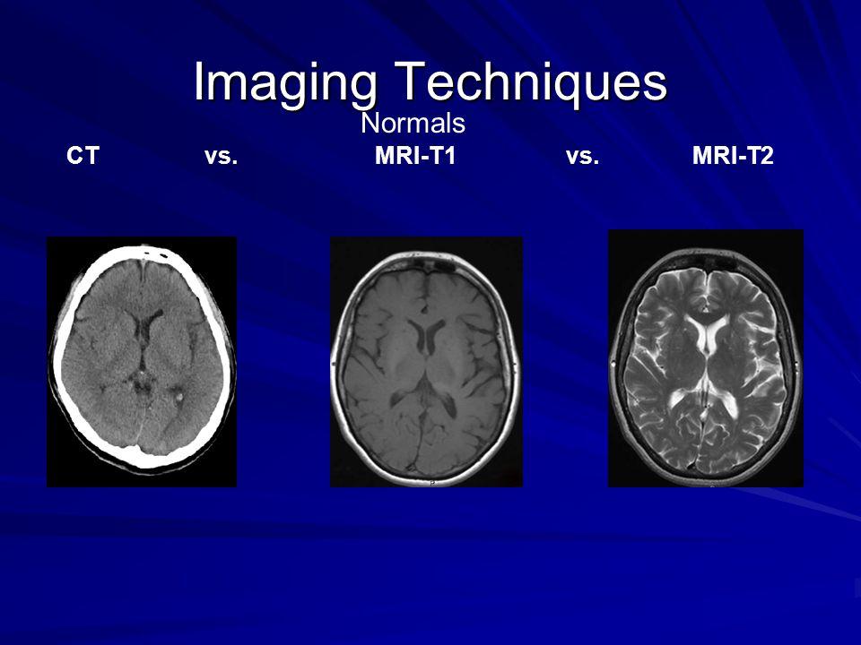 Imaging Techniques Normals. CT vs.
