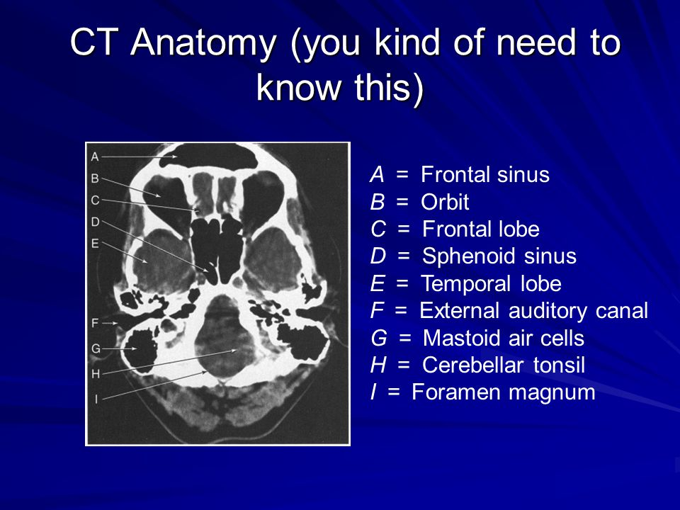CT Anatomy (you kind of need to know this)