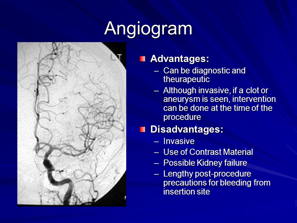 Angiogram Advantages: Disadvantages: