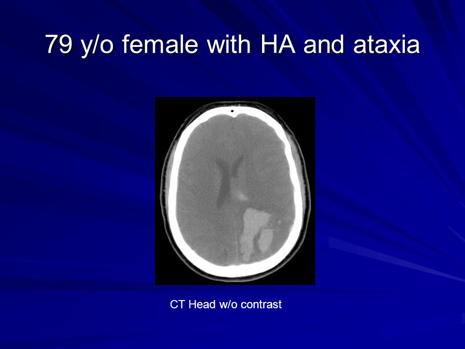 79 y/o female with HA and ataxia