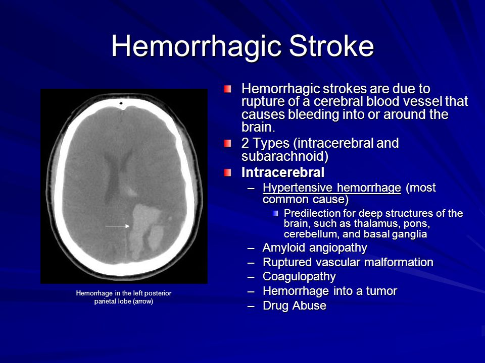 Hemorrhage in the left posterior parietal lobe (arrow)
