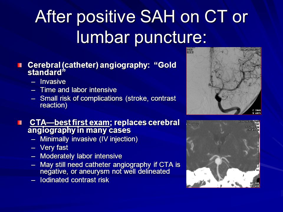 After positive SAH on CT or lumbar puncture: