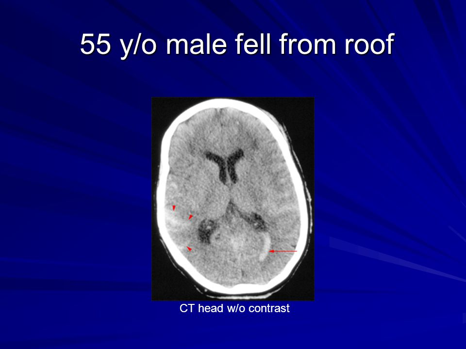 55 y/o male fell from roof CT head w/o contrast