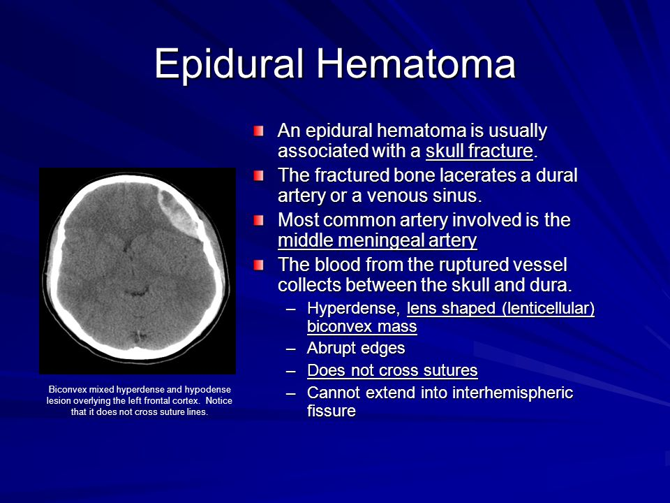 Epidural Hematoma An epidural hematoma is usually associated with a skull fracture. The fractured bone lacerates a dural artery or a venous sinus.