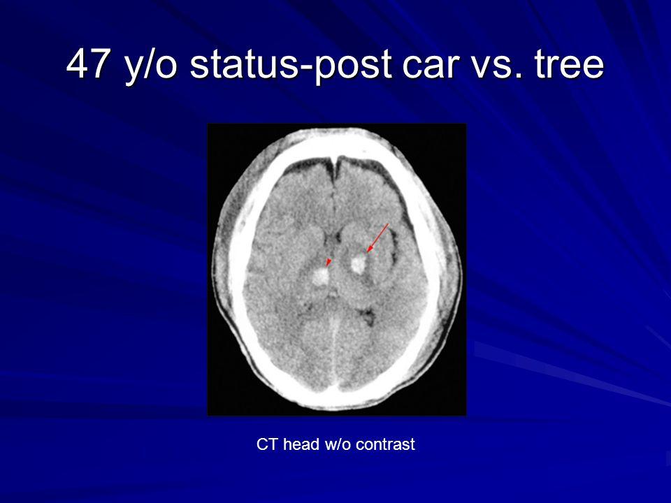 47 y/o status-post car vs. tree