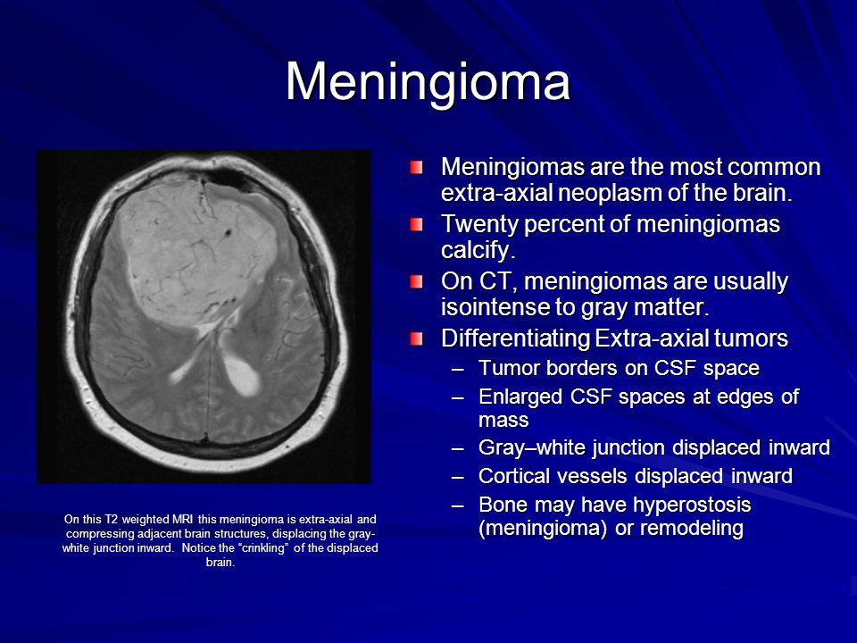 Meningioma Meningiomas are the most common extra-axial neoplasm of the brain. Twenty percent of meningiomas calcify.
