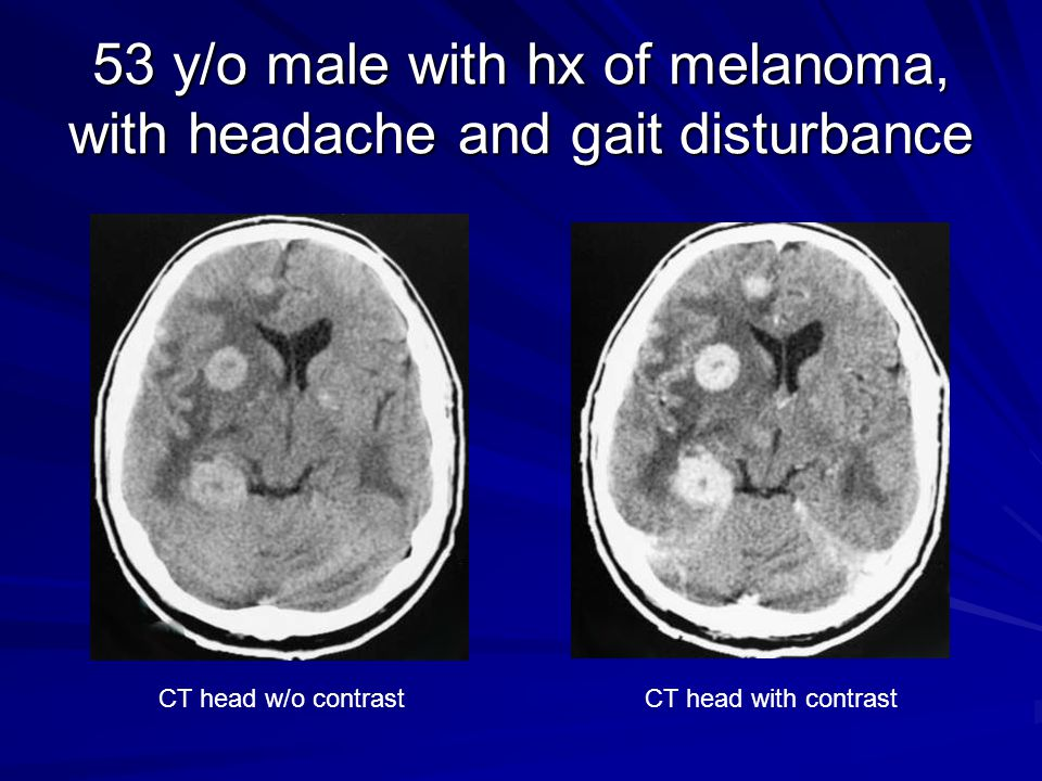 53 y/o male with hx of melanoma, with headache and gait disturbance